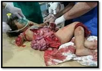 Palestinian child with guts blown out