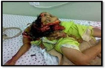 Palestinian Girl's Brains Blown Out